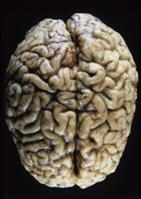 Crebro